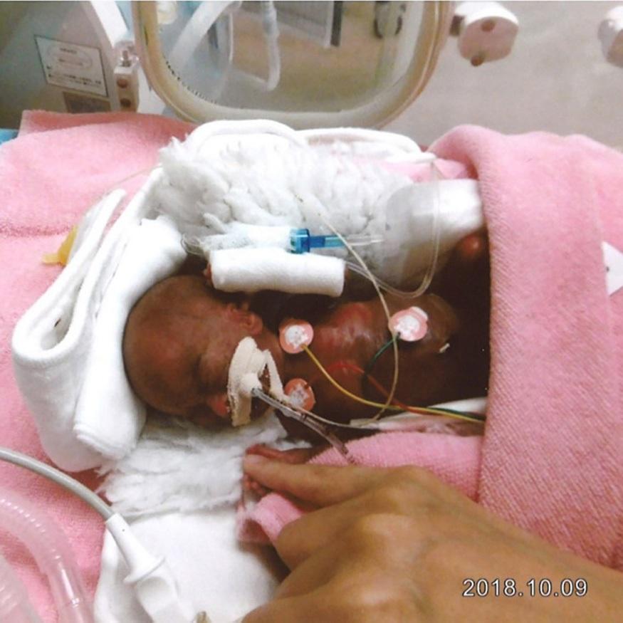 પહેલી ઑક્ટોબર, 2018ના રોજ જ્યારે રિયુસુકેનો ટોકિયો હોસ્પિટલમાં જન્મ થયો ત્યારે તેની લંબાઇ 22 સેન્ટિમીટર્સ હતી અને હોસ્પિટલમાં તેને નિઓનેટેલ ઇન્ટેન્સિવ કેર યુનિટમાં રાખવામાં આવ્યો હતો. તેને ટ્યૂબથી ખાવાનું આપવામાં આવતું હતું. ક્યારેક તેને માતાના દૂધથી ભીંજવેલા રૂના પૂમડાથી પોષણ આપવામાં આવતું હતું.